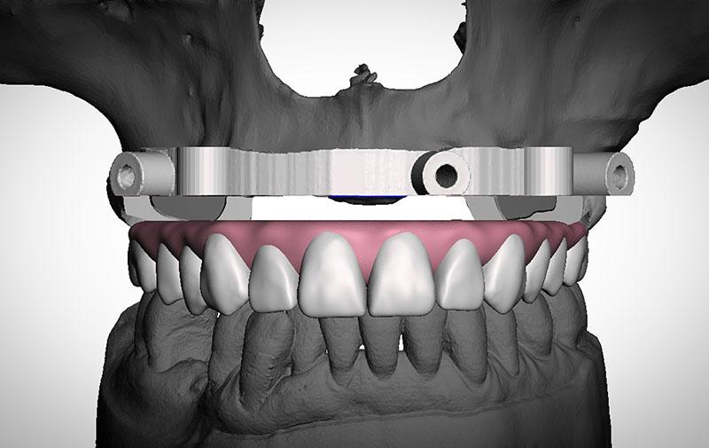 3DPrecsision Digital